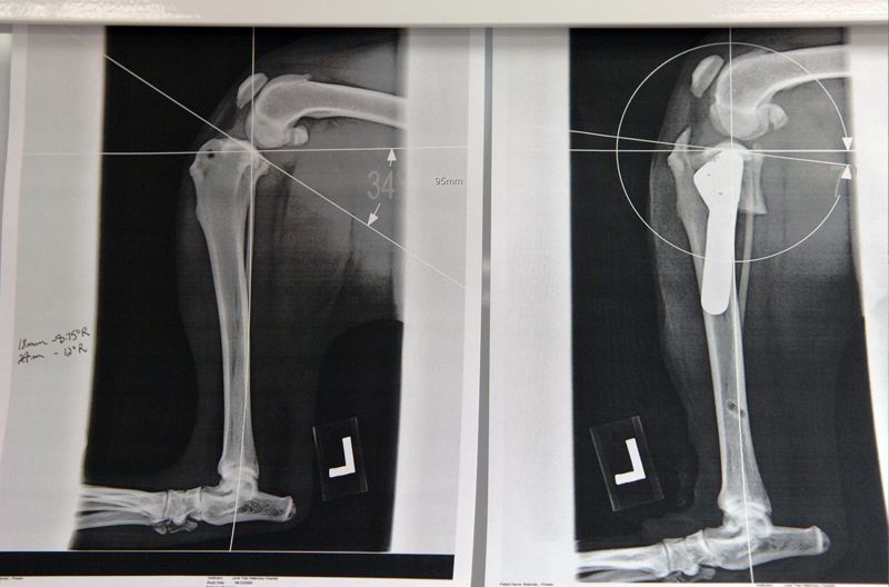 Before and after x-rays